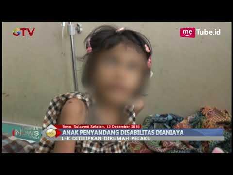 Xxx Mp4 KEJAM Tante Aniaya Ponakan Hingga Patah Tulang BIP 14 12 3gp Sex