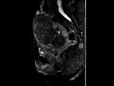 3d isotropic MRI of uterine fibroids