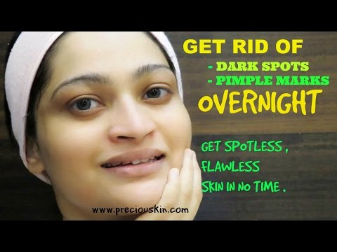 GET RID OF DARK SPOTS OVERNIGHT NATURALLY | Get Spotless Skin Super Fast | Baking Soda & Lime Juice