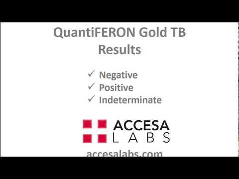 TB Blood Test: QuantiFERON Gold TB Blood Test Results Overview