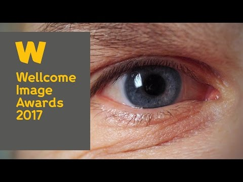 Walking into eyes using VR | Wellcome Image Awards 2017 (short version)
