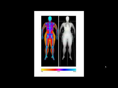 DEXA SCAN IMAGES DISCUSSION - DR MATT SHAW OF BODYSCAN