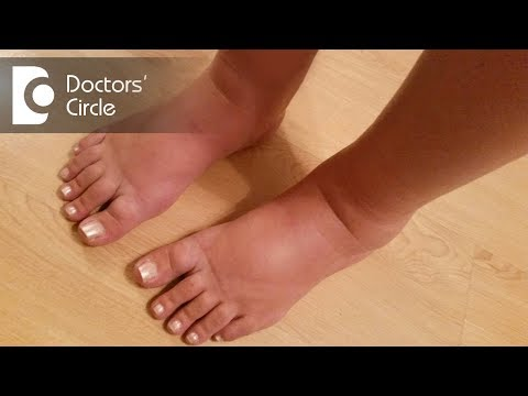 Possible causes for swelling in legs - Dr. Sharat Honnatti