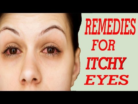10 Best Home Remedies For Itchy Eyes | Home Remedies For Itchy Eyes