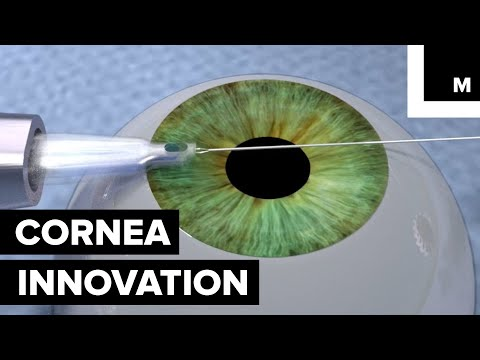 Students Created a New Tool to Help Perform a Tricky Cornea Transplant