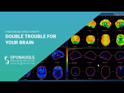 Lyme Disease | Mold Toxicity | Double Trouble For Your Brain