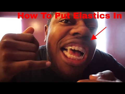 HOW TO Put Elastics/Bands In For Braces Feat. My Secret Twin