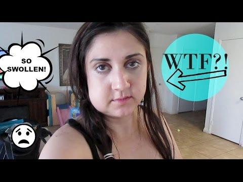WTF?! She is Swollen!