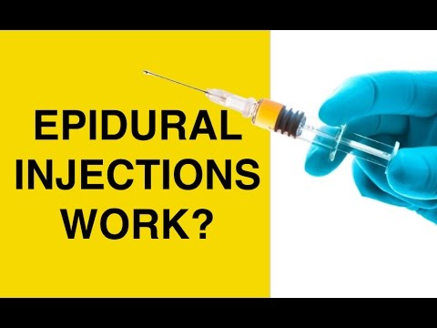 Epidural Injections for Back Pain and Sciatica - Cortisone Steroid Shots for Herniated Discs