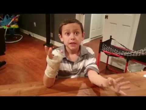 OMG I broke my pinky finger!