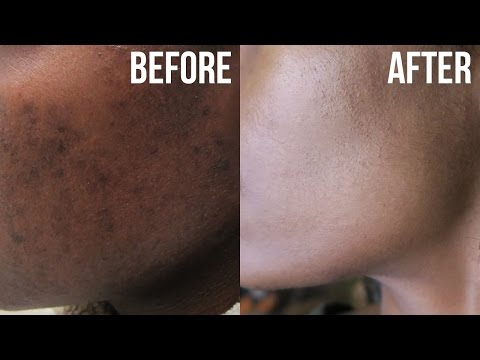 Get Rid of Acne &  Hyperpigmentation (Dark Spots)