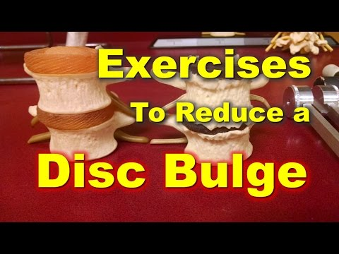 Heal Your Bulging Disc - Daily Exercise Regimen