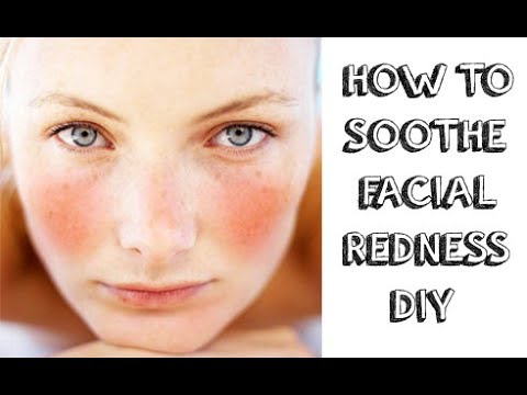 How to Soothe Face redness? The Best Home Remedies for Red and Irritated Skin.