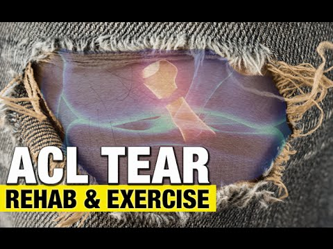 ACL Tears (REHAB TIPS AND BEST EXERCISE!)