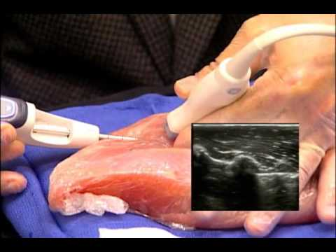 Mammotome EX - The Clinician's Guide - Holding the Mammmotome Device and Transducer