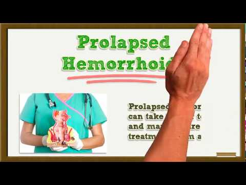 How Long Do Hemorrhoids Last Without & With Hemorrhoid Treatment