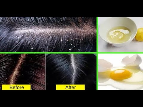 7 Life-Changing Tips To Get Rid Of Dandruff Permanently