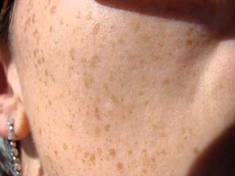 Solution How To Get Rid Of Freckles - Check Out This How To Get Rid Of Freckles And Moles