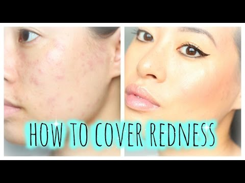 How To: Cover Redness | Allergic reaction, Acne, Breakout, Urticaria, Hives | Makeup Tutorial