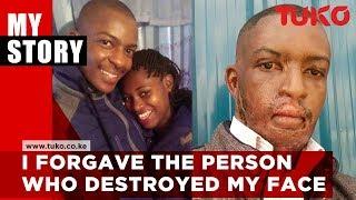 I forgave the person who destroyed my face - Kelvin Kairo  | Tuko TV