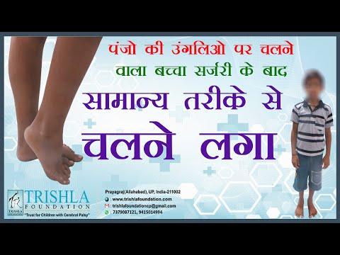 Hemiplegic spastic cerebral palsy : testimonial