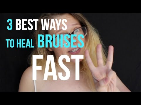 The 3 best ways to heal bruises fast?