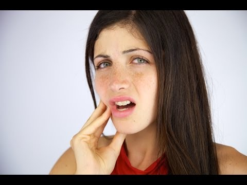 Dentist Bondi: What Causes Mouth Ulcers?