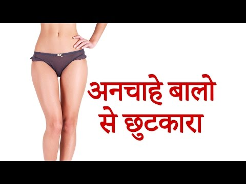 अनचाहे बाल हटाये  | unwanted hair removal | permanent hair removal, Remove hair permanently natural