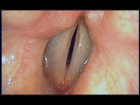 Fiberoptic Laryngoscopy with Strobe