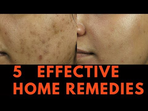 5 EFFECTIVE Home Remedies for Skin Pigmentation, Brown Spots and freckles