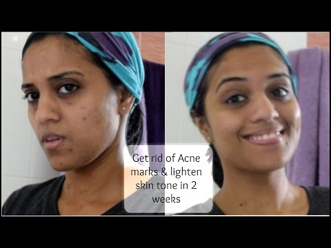 Get rid of acne marks & lighten skin tone in 2 weeks !!