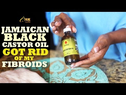 Get Rid of Fibroids with Jamaican Black Castor Oil!