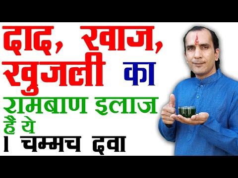 7 Eczema Treatment Home Remedies - 1 दिन में एक्जिमा ठीक करने के इलाज  Eczema Treatment in Hindi