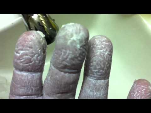 Fingertip Splits Bleeding Cracking