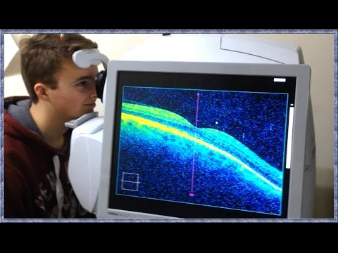 What is OCT Scanning? (Optical Coherence Tomography)