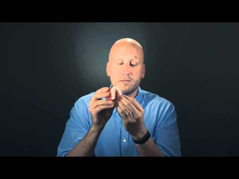 Invisalign Simply Explained
