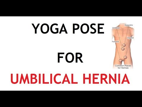 3 Yoga Pose for Umbilical Hernia