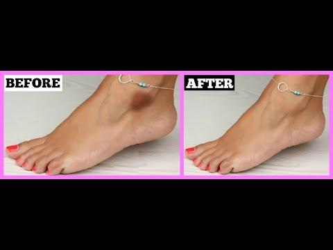 Get rid of dark knees/ankles/elbows at home(hindi)100% Works/कैसे टखने की काली त्वचा से छूटकारा पाए?