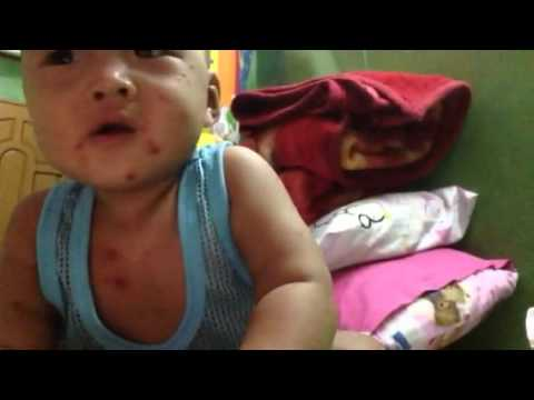 Baby having Chicken Pox