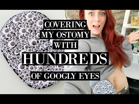 Covering my Ostomy with HUNDREDS of Googly Eyes| Let's Talk IBD