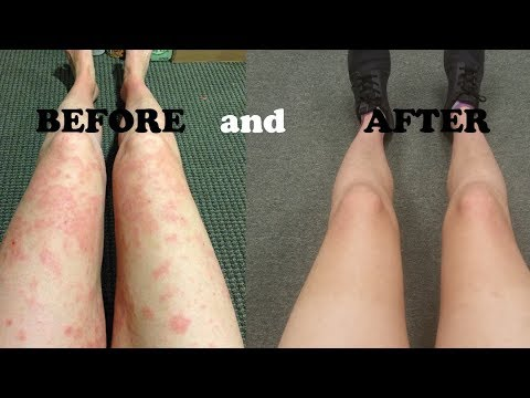 Heal the GUT to Heal Your ECZEMA
