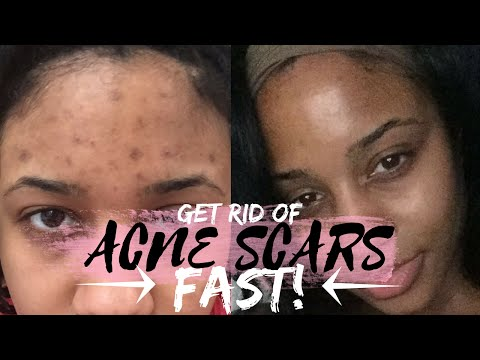 How to get rid of Acne and Acne Scars Fast!