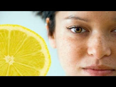 How to Get Rid of Freckles Naturally in a week || Top 5 Home Remedies for Freckles
