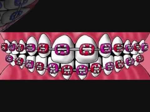 Cute colors for braces. (: