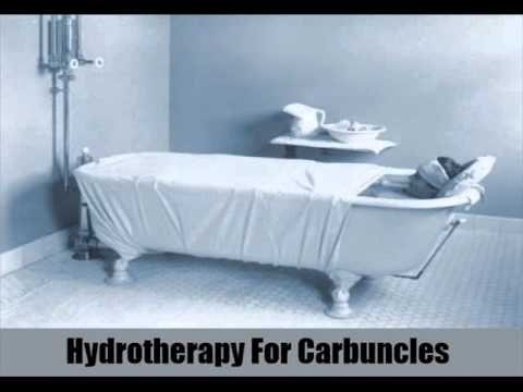 6 Effective Natural Cures For Carbuncles
