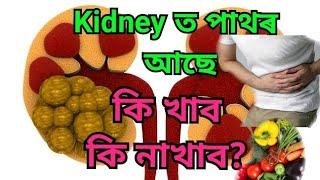 কিডনী পাথৰ | কি খাব কি নাখাব | Kidney stones | Health tips Assamese