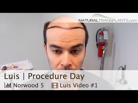 Thinning Hair   Best Hair Transplant McLean, Virginia   Procedure Day (Luis)