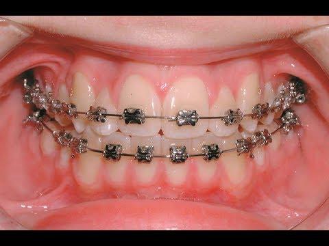 I got my braces