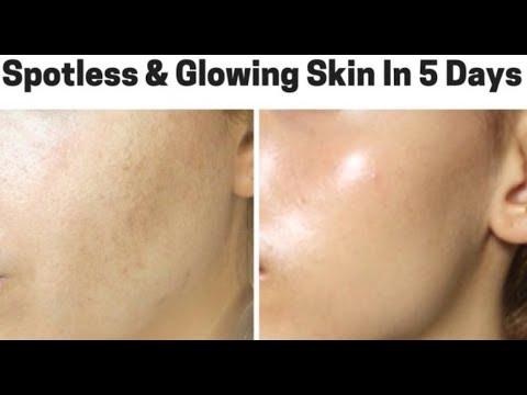 How to Get Crystal Clear Glowing Skin, Spotless Skin Tone   DeTan, Pimple Clean