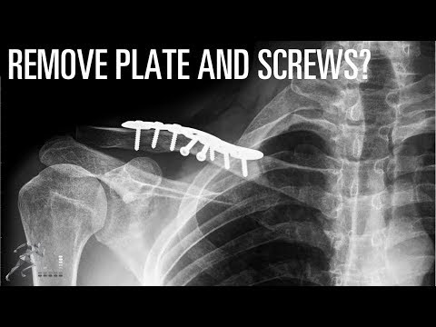 Should you have your plate and screws removed after your ankle fracture heals?